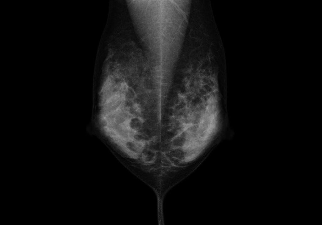 マンモグラフィー 高槻 乳癌検診